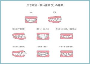 不正咬合(悪い歯ならび)の種類/小倉の矯正歯科・小児歯科
