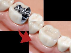 銀歯にサヨナラ、自然に近いセラミックの歯へ